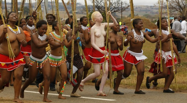 Love add naked Albinos