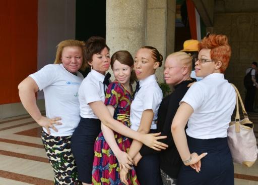 "Résultat de recherche d'images pour ""albinos ndundu"""