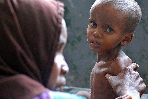 Une mère et son enfant à l'hôpital Banadir, le 19 juillet 2011 à Mogadiscio, en Somalie AFP Mustafa Abdi