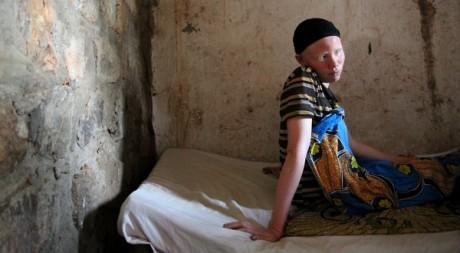 Claudine, 18 ans, vit cachée, dans la peur permanente des meurtres rituels. ©Matthieu Millecamps