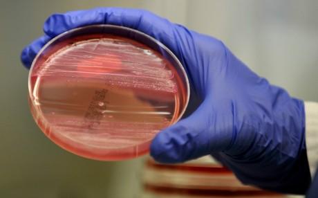 Bactérie, laboratoire d'Hambourg. REUTERS/Morris Mac Matzen
