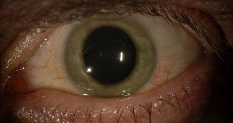 Une photo de l'oeil de Ian Crozier, survivant d'Ebola. Crédit Emory Center