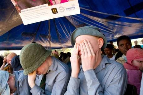 Deux enfants albinos prient lors d'un rassemblement à Mulanje au Malawi, le 27 juin 2015 AFP/Archives ERICO WAGA