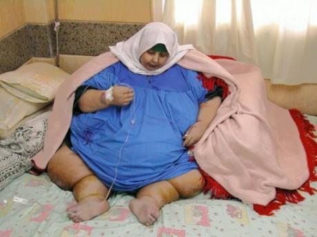 Une Egyptienne obèse dans un hôpital d'Alexandrie le 16 janvier 2005. Photo AFP/Adel el-Masri