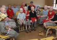 Les albinos veulent sortir de l'ombre