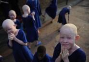 Albinos en Tanzanie: une vie de stigmatisation et de violence