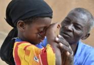 Niger: le noma, épouvantable maladie de la misère et de la malnutrition