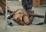 Soudan du Sud: le nombre de morts du choléra augmente