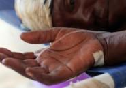 Angola: 51 morts de fièvre jaune depuis fin décembre