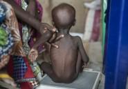 Les jumeaux fortement touchés par la mortalité infantile en Afrique (étude)