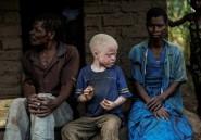 Des candidats albinos aux élections de 2019 au Malawi, une première