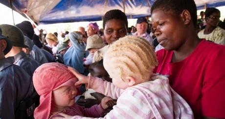 Des enfants albinos jouent dans les bras de leur mère au Malawi, le 27 juin 2015. Crédit photo: erico waga / AFP