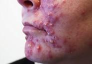 Algérie : 70 % des adolescents souffrent d'acné et de boutons puants