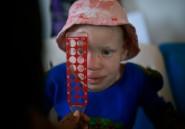 L'albinisme, maladie génétique taxée de sorcellerie en Afrique subsaharienne