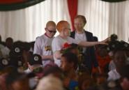 Kenya: les albinos ont leur concours de beauté pour  lutter contre les préjugés
