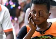 Côte d'Ivoire: rendre le sourire aux victimes du noma, maladie qui défigure et exclut