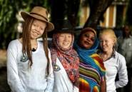Tanzanie: les albinos ont peur après l'exhumation d'un des leurs