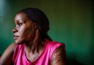 En Ouganda, les victimes d'attaques